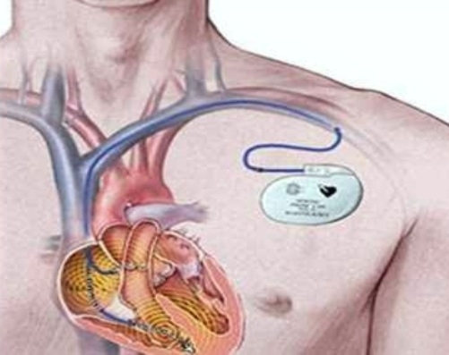 Pacemakers implanted patients stay away from the high tension wires