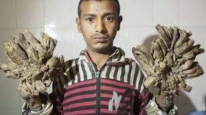 Tree man syndrome. Man survived living with four kg of warts on his hands and feet